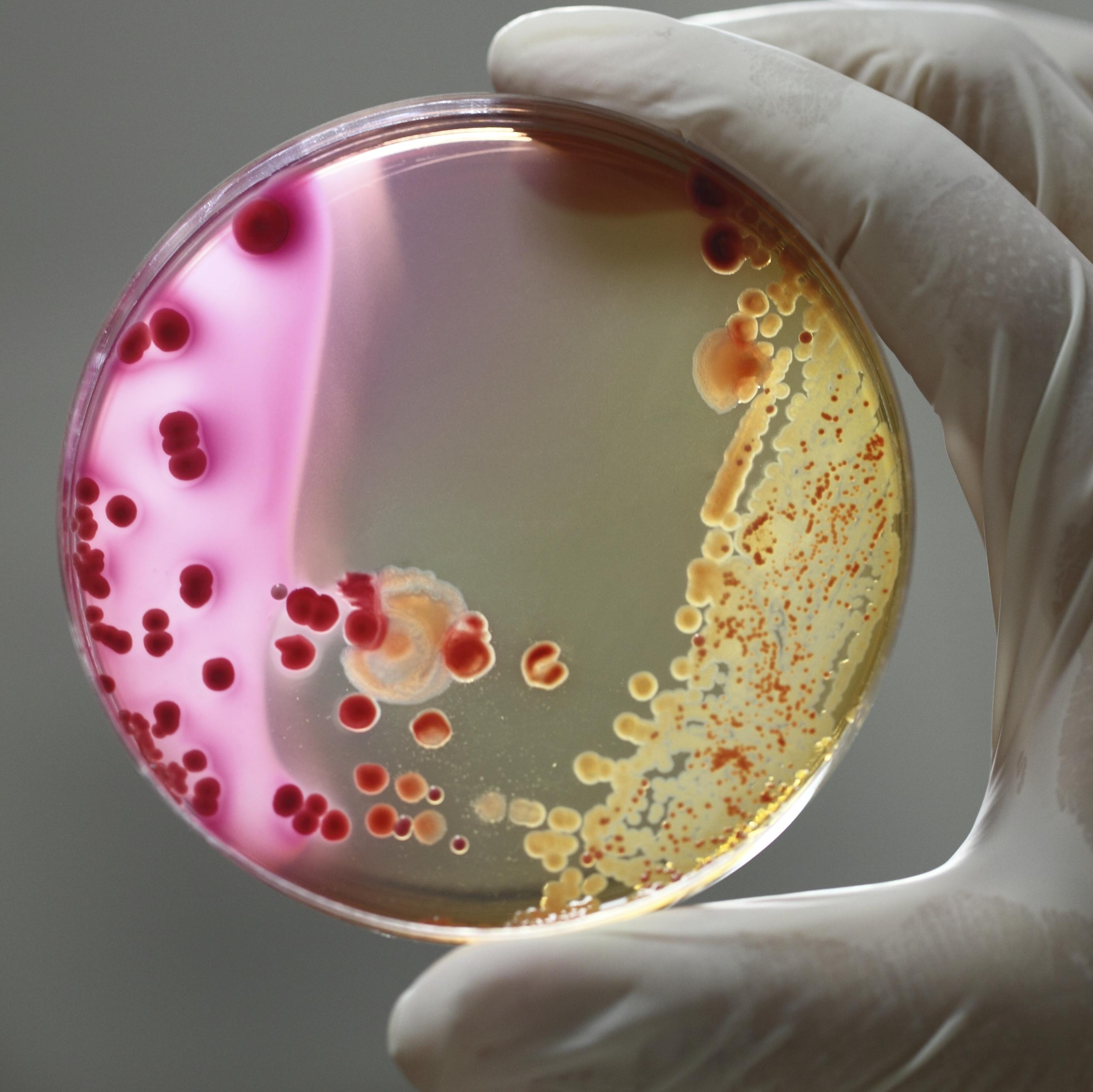 Maternal Bacteria Linked To Pretermborn's Health